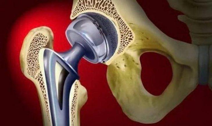 Эндопротез. Фото с сайта НИТУ «МИСиС»
